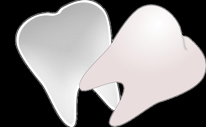 Przepiękne urodziwe zęby dodatkowo efektowny przepiękny uśmiech to powód do dumy.